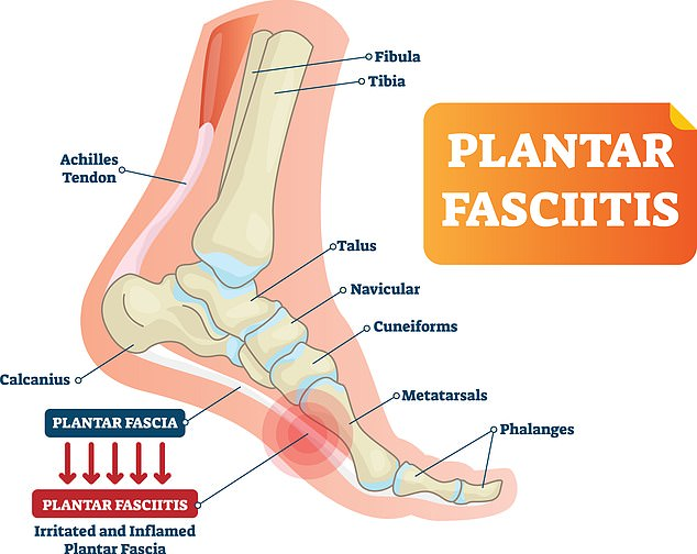 Plantar fasciitis is one of the most common causes of heel pain, affecting thelong web-like ligament connecting the heal bone to the toes in the bottom of the foot ¿ the plantar fascia