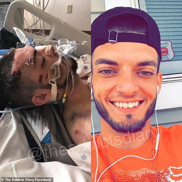 Transformed:  Jorden shared a recent photo in which he is smiling and happy (right) — a far cry from how he looked while he was hospitalized, addicted to heroin and meth (left)