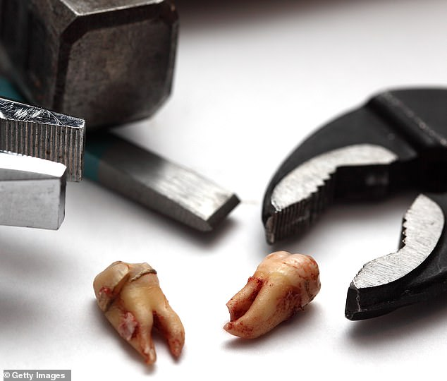 Reyes-Tajimaroa is said to have played 'injured' victim, 'getaway' driver or 'lookout' in approximately 16 phony accidents, also receiving medical attention for self inflicted injuries. At one point, he used pliers to break his own teeth (stock)