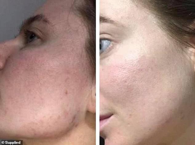 Keira Houldsworth, 25, also from Brisbane, said her 'three month pregnant belly of bloating' subsided and redness in her cheeks disappeared within two weeks of using the pills
