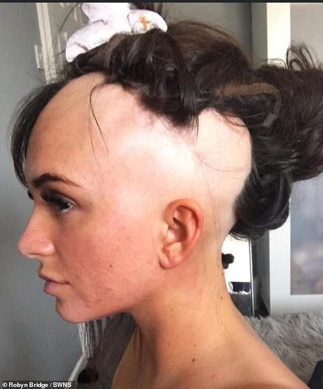 Robyn tried hair loss treatments and at one point had a full head of hair but this was fleeting so she couldn't continue with hair loss treatment