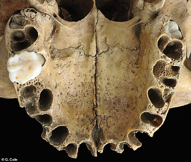 British experts who studied the skull ¿ which was dug up in the sixties ¿ said it belonged to a 15¿18 year old ¿ based on the dentition, pictured ¿ who likely died directly from her injuries