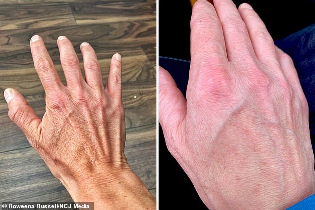 Before and after Roweena Russell's hands that have changed due to inflammation after the coronavirus