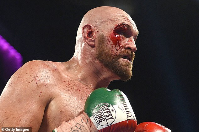 Fury suffered a huge cut beneath his right eye and required 47 stitches to sew it back up