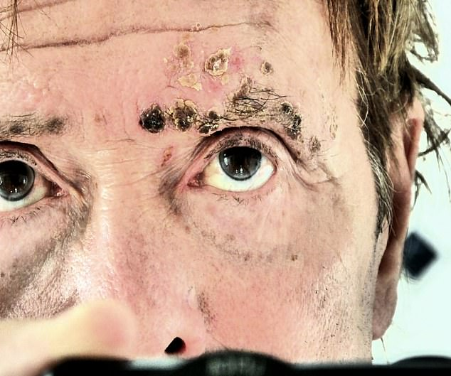 A never-before-seen photo shown on Piers Morgan's Life Stories shows the painful rash he got in the midst of the accusations that could have blinded him