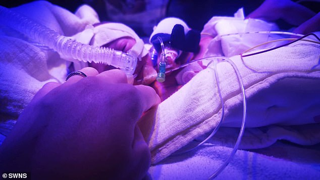 The tiny babies were kept in intensive care for weeks after they were born in August so allow them to gain strength