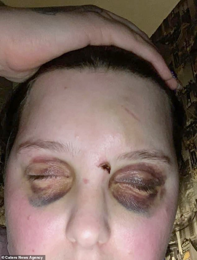 Abbie Bryson, 26, from Fife, Scotland, has epilepsy and is often left with painful black eyes and cuts on her face (pictured) when she collapses - with strangers often accusing her of being a trouble maker