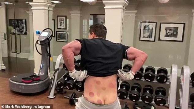 Showing his underwear: After he turned around and pulled down his pants, his back was covered with dark red bruises from a recent cupping therapy appointment