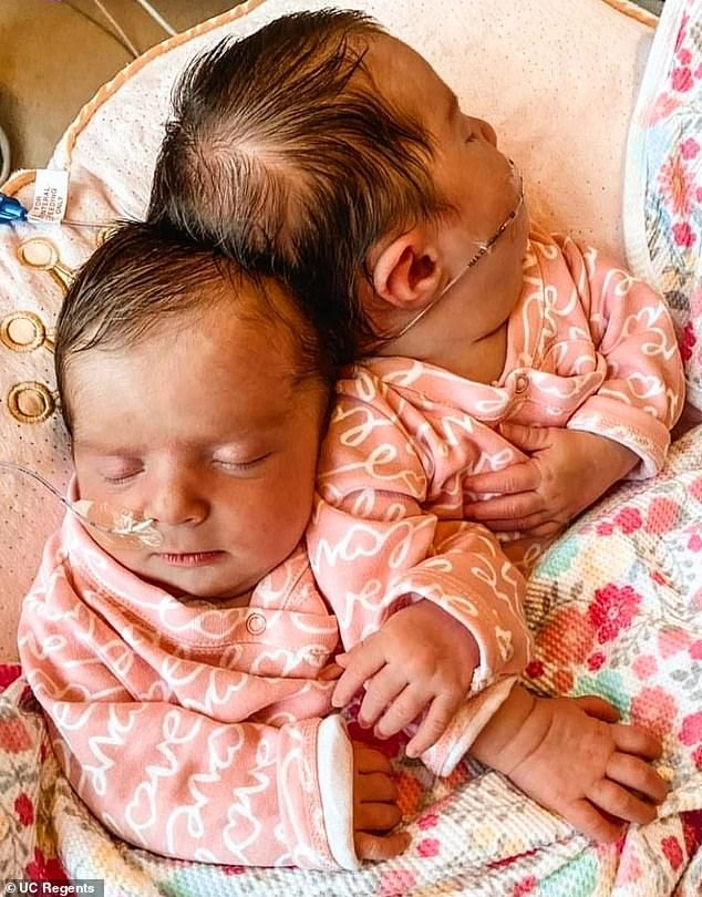 Not your everyday twins!They shared a skull, a brain and soft tissues, which occurs in just 10 to 20 babies in every one million births in the US