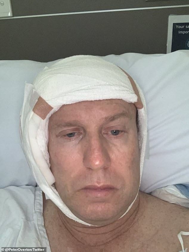 Mr Overton posted a heavily bandaged selfie on Twitter after his operation on Monday