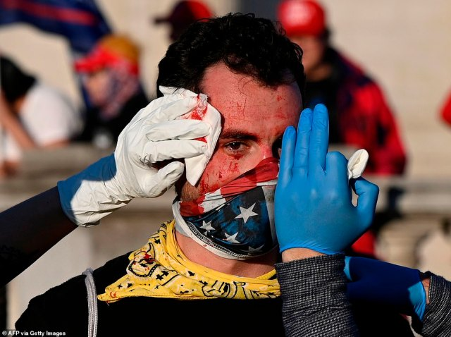An injured supporter of US President Donald Trump is helped after being assaulted by an unknown assailant in DC