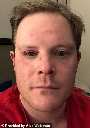The attack left Weisman with vision damage that required hours of surgery on Wednesday and Thursday