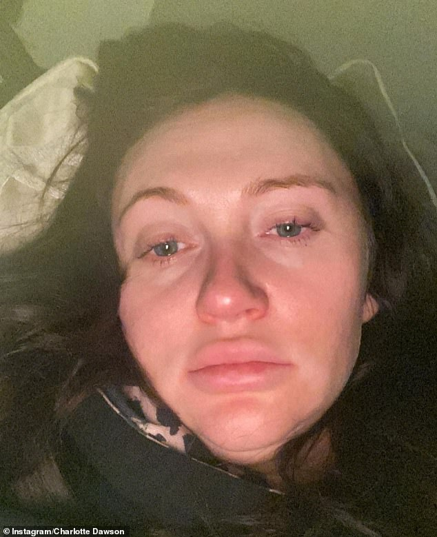 Pregnant Charlotte Dawson reveals she is 'petrified' amid battle with gestational diabetes
