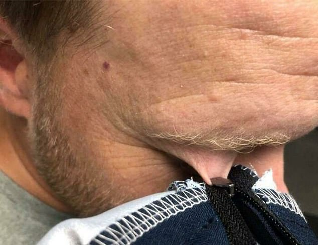 People have shared snap of poor souls having worse days than you. A man stuck his eyelid in the zipper of his jacket.