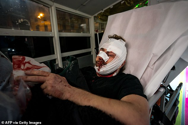 Among those injured in Saturday's protests was award-winning Syrian photojournalist Ameer al-Halbi, 24, seen with a bruised face and much of his head covered in bandages.