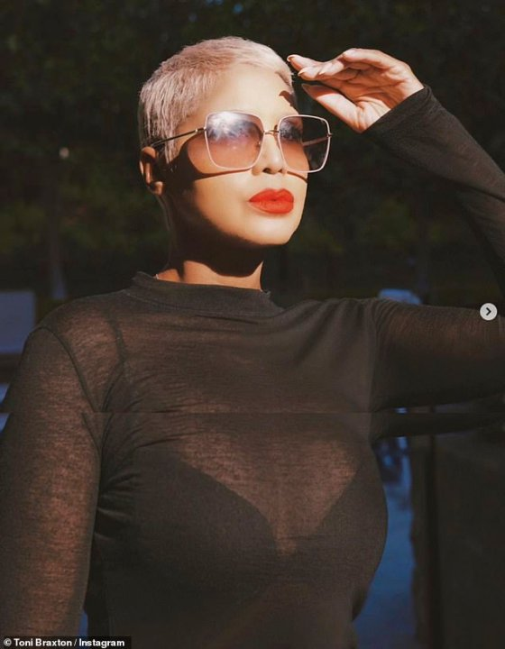 Lupus Battle: Possessing a blue pixie cut, Braxton is open to a serious fight against Lupus autoimmune disorder
