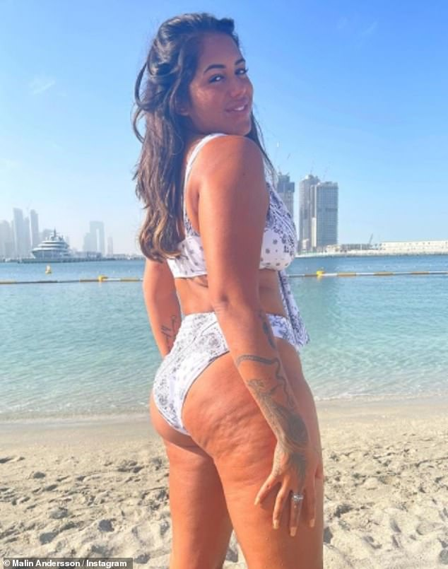 Sizzling:Malin alsolooked sensational on Sunday as she showcased her killer curves in a white bandana bikini in an empowering new Instagram post