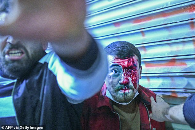 A Turkish man bleeding talks with a policemen on Tuesday during a demonstration in Istanbul