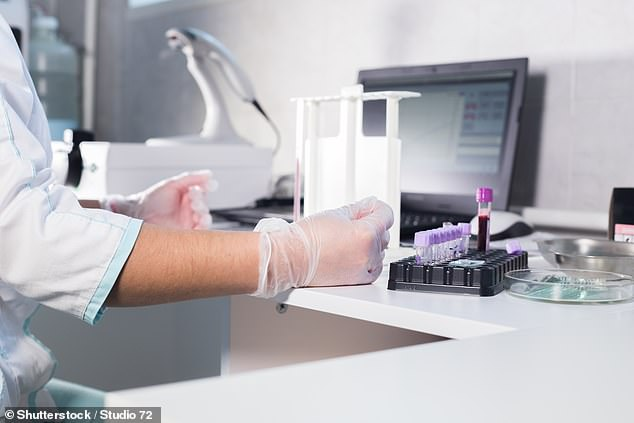 Imperial College London researchers have identified a cytokine - dubbed GM-CSK - that was at high levels early on in Covid patients that later suffered severe disease. Doctors say this could provide an early warning sign for which patients are more at risk from the virus