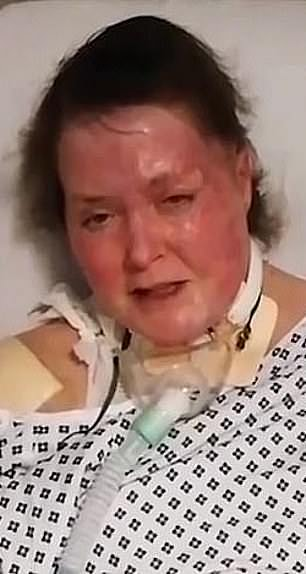 Michelle Pearson during her hospitalisation after the arson attack in 2017