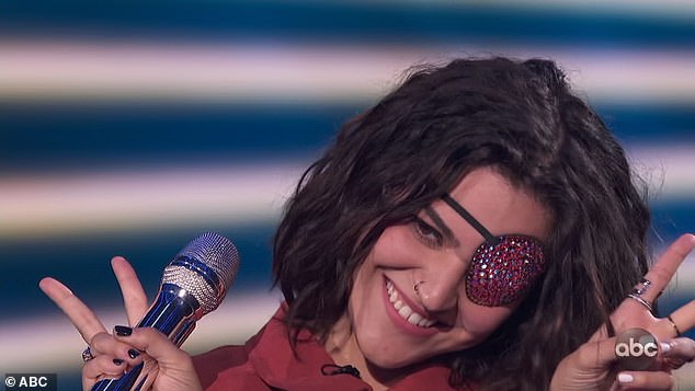 """Coolest:'Are you okay?' Katy asked Andrea afterward. 'I was just like, """"Is everyone going to ignore that she's wearing the coolest eye patch ever?"""" You're the only one singing with one eye today and you're doing a really great job. And you're making it look really fashionable'"""