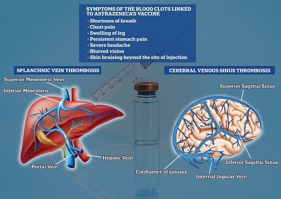 The EMA, which polices the safety of drugs used on the continent, spotted 169 cases of cerebral vein thrombosis (CVST) and 53 cases of splanchnic vein thrombosis (SVT), from 34million jabs. CVST occurs when a vein that drains blood from the brain is blocked by a clot. It can lead to a stroke. SVT is the same type of blood clot but it occurs in the digestive system