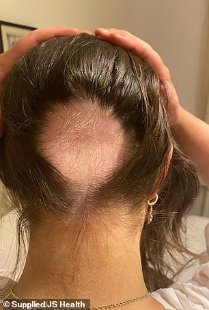 A young woman has revealed how she lost huge chunks of hair due to stress and struggled to find a cure for the surprising loss of her once-healthy locks.