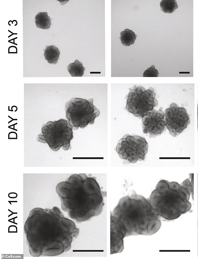 Another ethical issue that comes from brain organoid transplants deals with humans. If something goes wrong, the mini brain can't be removed. Pictured is the grown process of brain organoids starting at three days to 10 days