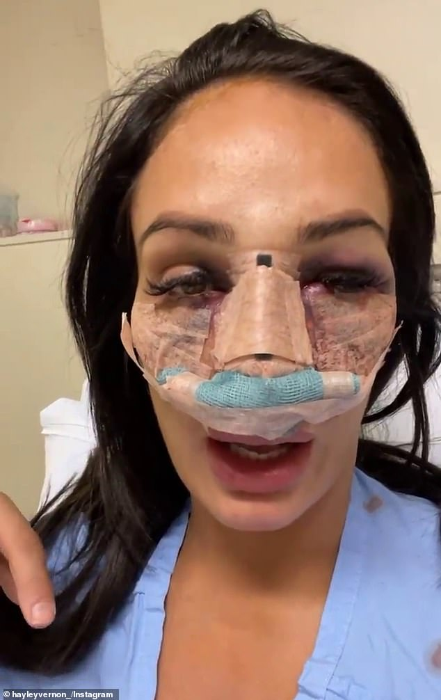 Battered: Two weeks ago, Hayley looked worse for wear as she revealed the horrifying aftermath of her multiple procedures
