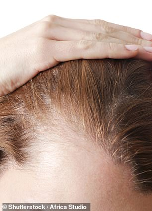 Telogen effluvium is a hair loss condition caused by severe illness (such as COVID-19), stress or significant life changes and events