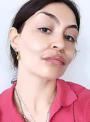 Giulia is pictured with plumped up cheeks and lips
