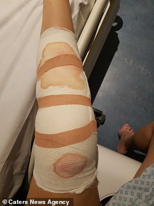 The scar from her original surgery for the broken leg began weeping (pictured) forcing her to take the difficult decision to have it amputated