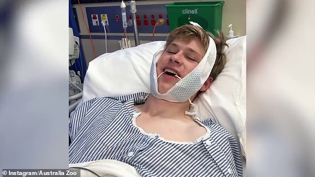Ouch: In a video posted to the Australia Zoo's YouTube channel, the 17-year-old wildlife advocate and photographer was seen in hospital