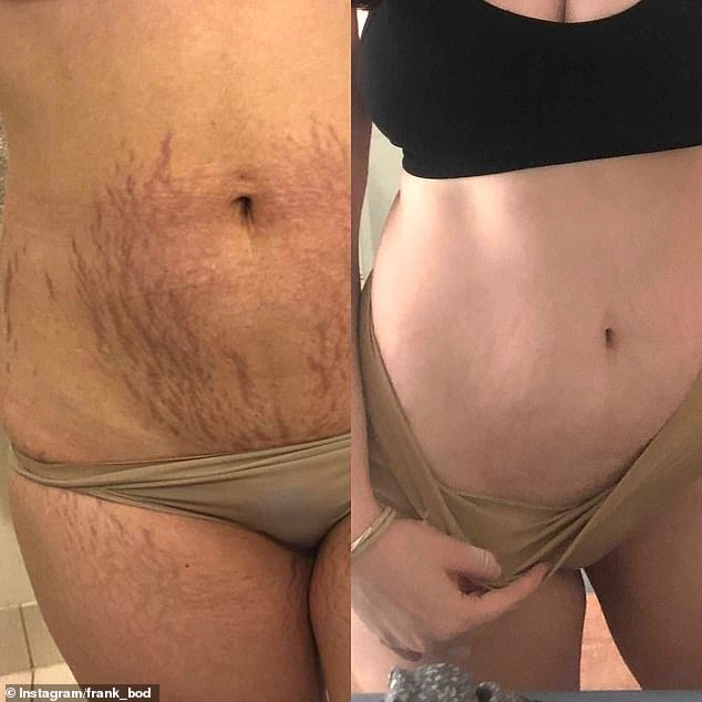 Eliza, from Brisbane, is swearing by a 'miracle' $9.95 beauty product for clearing up her stretch marks just months after giving birth. She shared photos