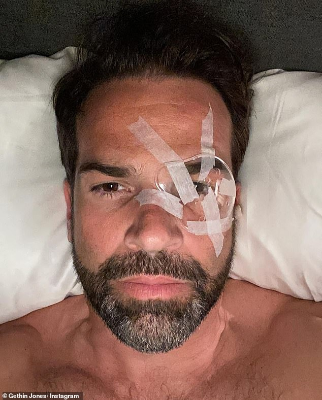 'I was struggling to see': Gethin Jones shocked his social media followers on Tuesday when he revealed his swollen eye - protected from the elements with surgical tape and a plastic cover -after receiving laser eye surgery