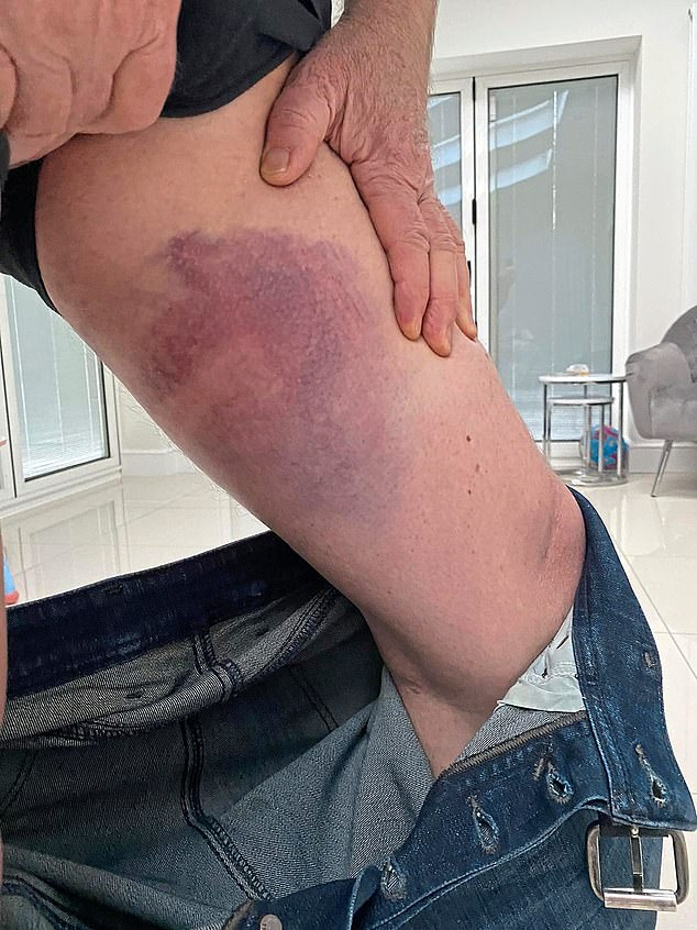 The fan showed Sportsmail the bruising he received whilst clashing with police on May 2