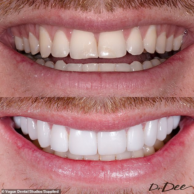 Delighted with the results: 'I couldn't be happier with how they've turned out, my teeth feel strong, they look great,' Bryce told Daily Mail Australia of his new smile