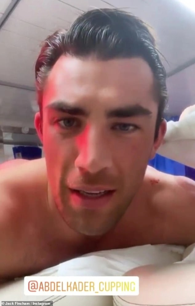'Look what's come out of my head': Love Island's Jack Fincham revealed the blood removed from his head after a gruesome-looking cupping treatment in an Instagram post on Sunday