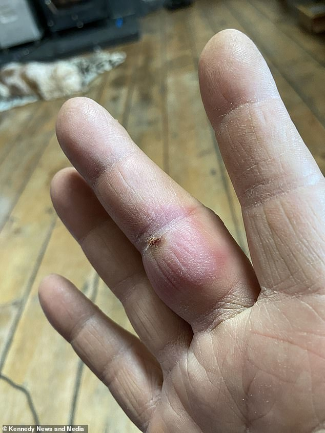 Despite having become one of the most common arachnids in many urban parts of the UK, the exact health threat they posed has long been a subject of debate. Experts from the National University of Ireland, Galway, however, have shown that their venom can trigger reactions similar to those seen with true black widow bites. Pictured: a finger swollen by a painful bite