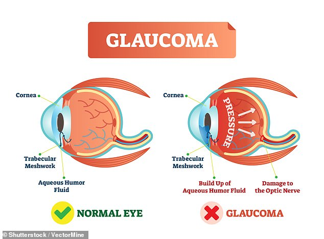 Glaucoma is a group of eye diseases in which the optic nerve or retina is damaged, usually as a result of a build-up of 'intraocular' pressure within the eye. In the UK, glaucoma is estimated to account for 10 per cent of all blindness registrations