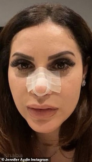 Chin up:It was unclear what the exact evidence for her chin implant was, though there was a bit of swelling around her jawline