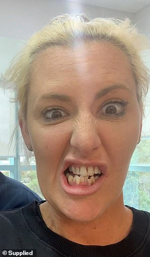 Phobia: Jess revealed last year that she had refused to visit the dentist for 25 years, explaining that her fear had started