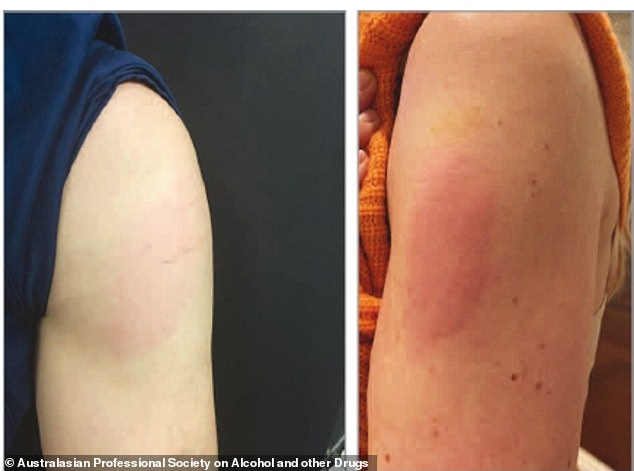 Around two percent of people who receive an mRNA vaccine, either the Pfizer or Moderna shots, will develop a skin condition like a rash or hives. The condition, nicknamed 'Covid arm' is harmless and will quickly pass
