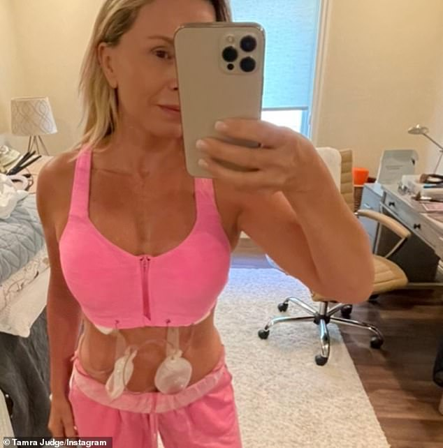 Post op:On Monday, she underwent breast implant and capsule removal surgery on Monday with plastic surgeon, Dr. Milind Ambe of Newport Surgery Center