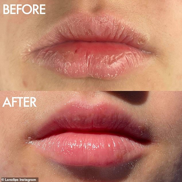 Australian beauty brand Lanolips is struggling to keep stock of a multipurpose salve that can be used to moisturise lips (a customer is shown before and after) and soothe dry skin on the face and hands