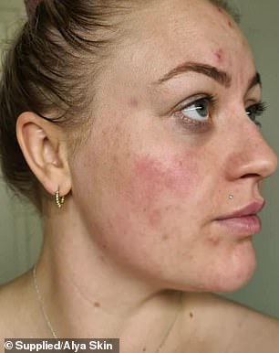 Besides the redness and pain, Alissa's skin was extremely dry but oily along her T-zone