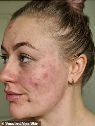 Alissa Williams, from South Australia, turned to Alya Skin in August 2019 after seeing an ad on Instagram