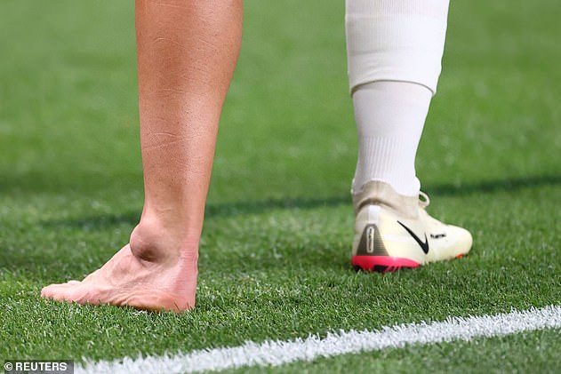 The Real Madrid star's ankle was damaged by Taher Mohamed before becoming very swollen