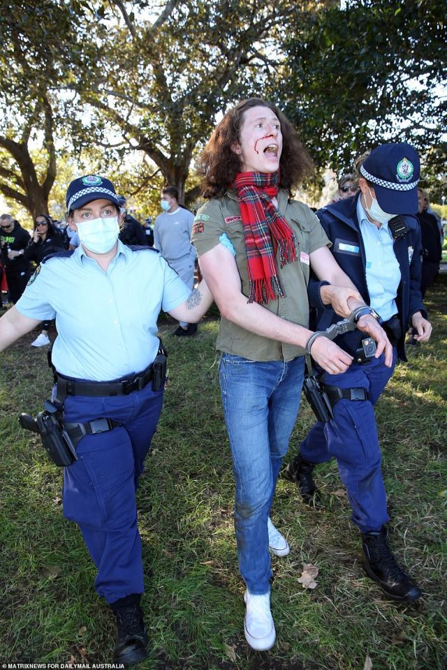 One man with blood dripping from his nose is seen being walked away in handcuffs during violent anti-lockdown protests in Sydney on Saturday