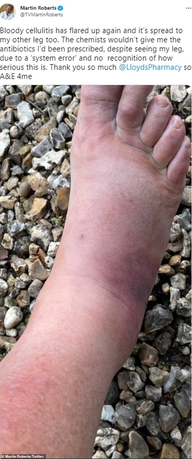 Ouch!Keeping his Twitter followers updated, the presenter penned: 'Bloody cellulitis has flared up again and it's spread to my other leg too' - alongside an image of his swollen leg